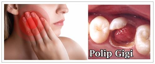 Cara Mengobati Polip Gigi Secara Aman Dan Alami