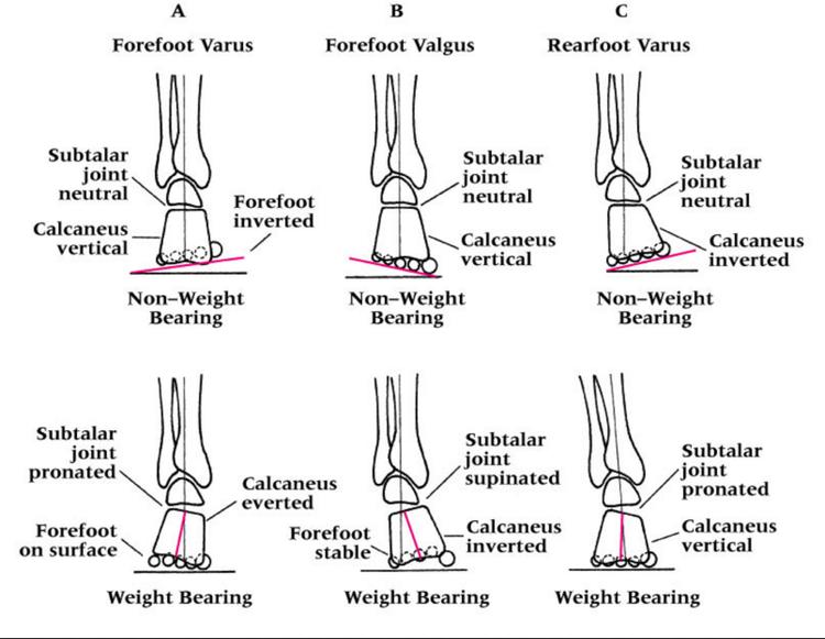 PhysioMotion: [進階肌動學] 足底三角 Foot Tripod