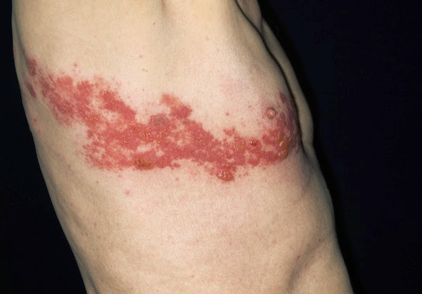 Shingles Is A Painful Reactivation Of The Chickenpox Virus