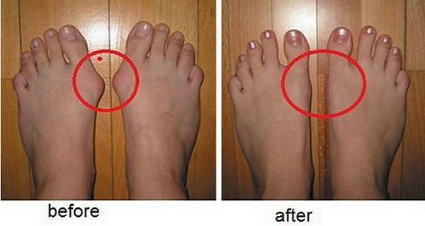 HERE'S HOW TO GET RID OF BUNIONS COMPLETELY NATURALLY