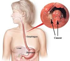 Who is susceptible esophageal cancer?