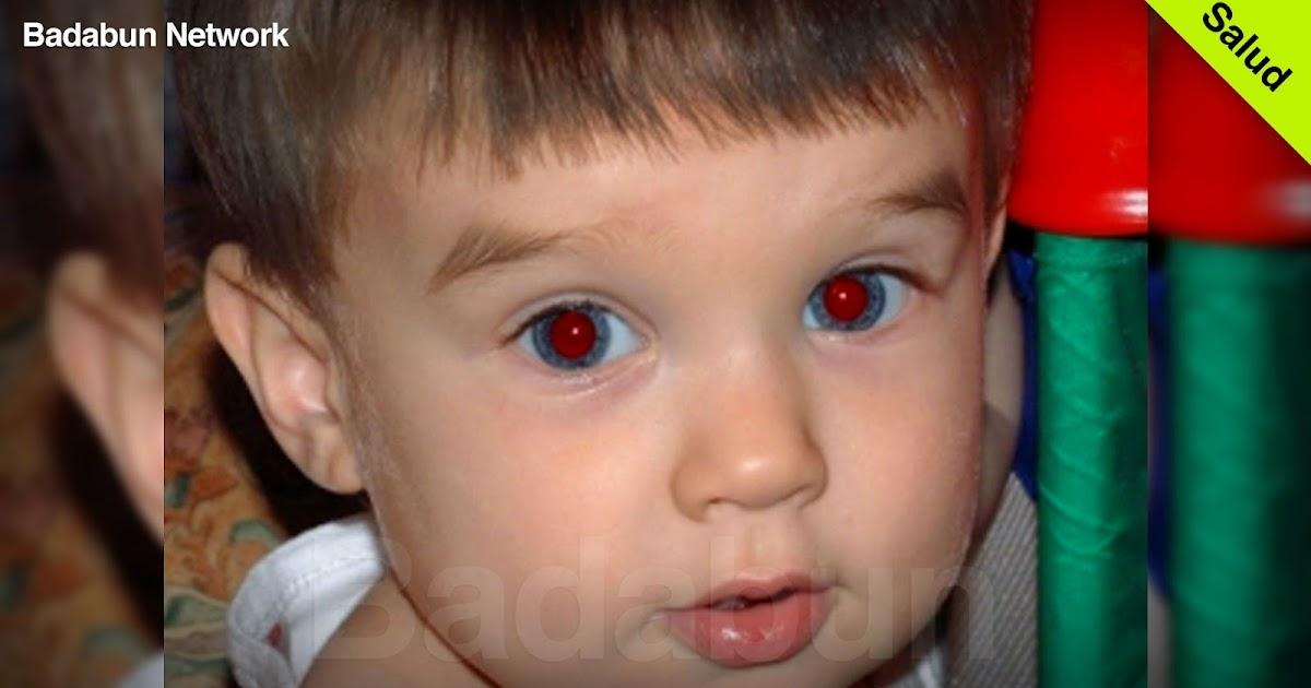 cancerdeojo ojosrojosenfotos porquesalenojosrjos retinoblastoma cancerinfantil