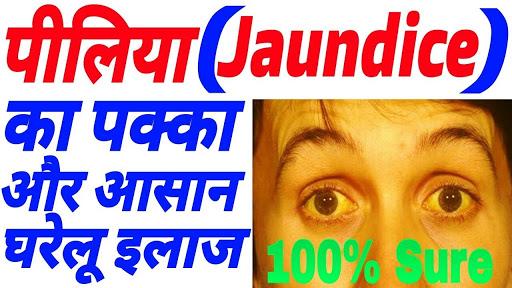 पीलिया रोग का आयुर्वेदिक इलाज, Jaundice Treatment in hindi