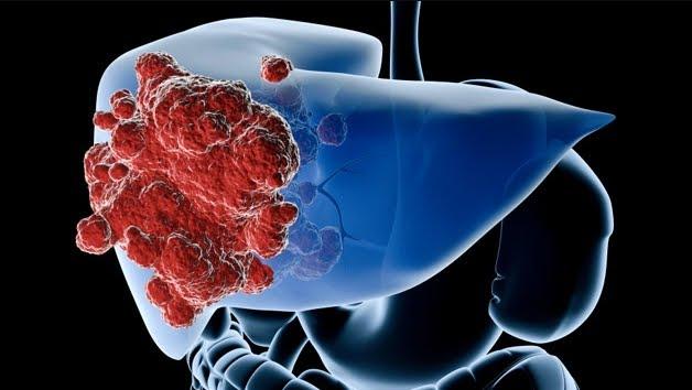 Cancro del fegato: la terapia genetica futuristica sui topi regala nuove speranze per l'uomo