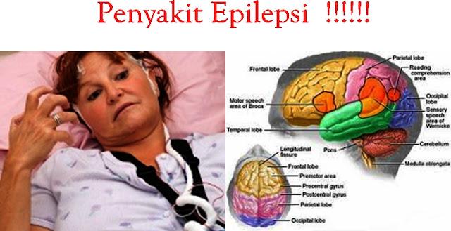 Penyebab Terjadinya Kekambuhan Pada Epilepsi