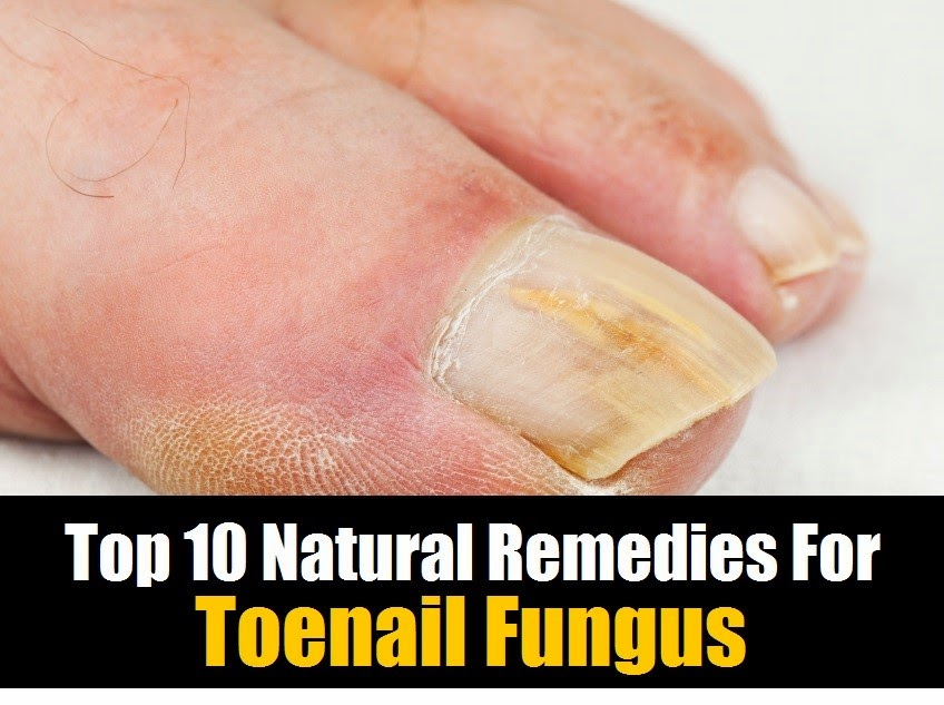 Natural Treatment For Fungus Between Toes