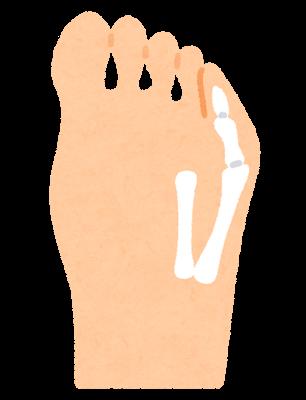 内反小指のイラスト