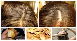 Sadece Patates Kullanarak Oluşan Beyaz Saçlardan Kurtulun! 2