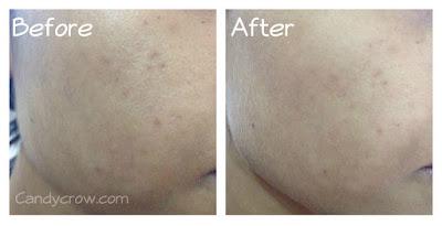 7 Day Garnier Challenge - Garnier White Complete Face Wash and Cream Review
