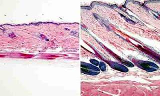 Células-tronco para fazer o cabelo crescer