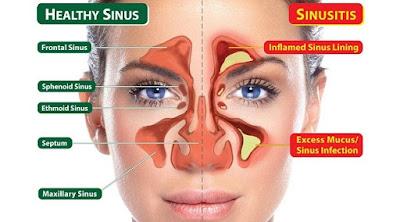 Penyebab dan Gejala Flu dan Sinusitis