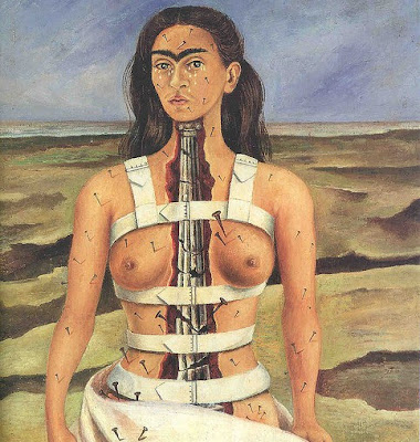 Frida Kahlo and chronic pain