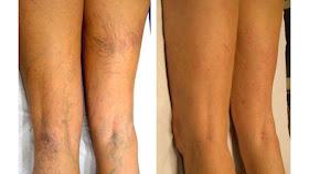 que causa las varices en las piernas