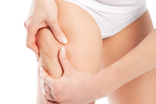 Workout and Cellulite - healthyinfo.org