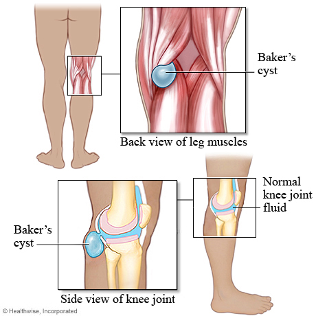 BAKER'S CYST | PHYSIO BLOG-2012