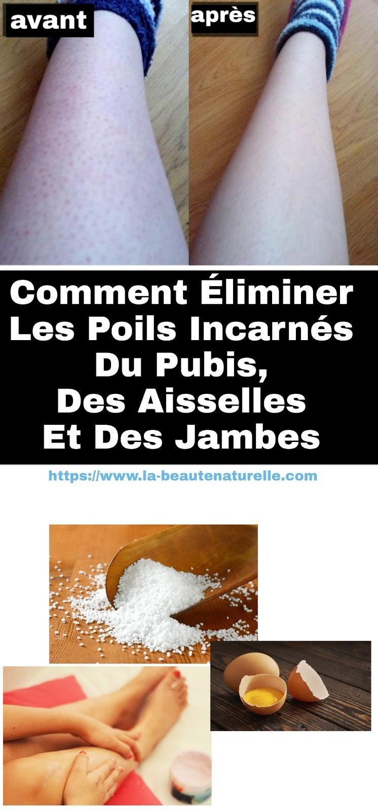 Comment Éliminer Les Poils Incarnés Du Pubis, Des Aisselles Et Des Jambes