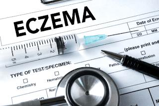Ammonium Lactate For Eczema