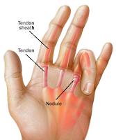 http://goresansay.blogspot.com/2015/08/cara-mengobati-penyakit-trigger-finger.html