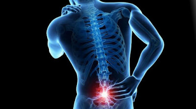 Penyakit tulang belakang - punggung