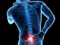 6 Tips Menghindari Penyakit Tulang Belakang, Praktis dan Mudah Dicoba