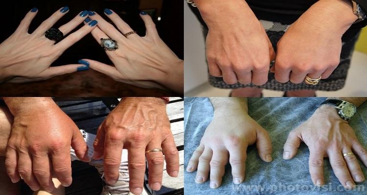 خلطة لتسمين اليدين واخفاء العروق بسرعة وإلى الأبد