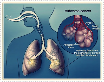 Mesothelioma and Asbestos Legal Options | Mesothelioma Law Firm