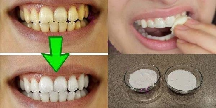 Como Clarear Os Dentes Em Casa Aldine Azevedo Moda E Beleza