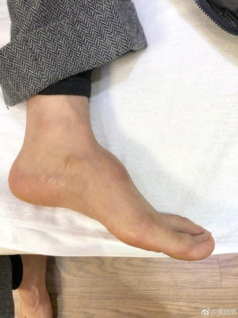 Huang Xiaoming foot injury
