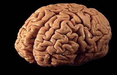 خلل تقني ألغى 40 ألف من الدراسات حول الدماغ!