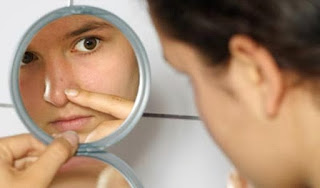 Acne Control Tips That Minimize Breakouts