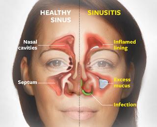 sinusitis dan minyak varash