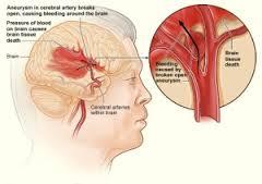 Cara Mengobati Penyakit Cerebrovascular