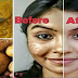VERY AMAZING: It Removes The Spots From Your Face In Just 3 Nights!