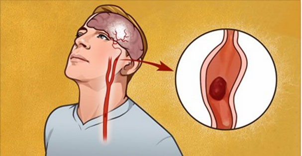 7 Early Warning Signs Of Stroke Everyone Should Know