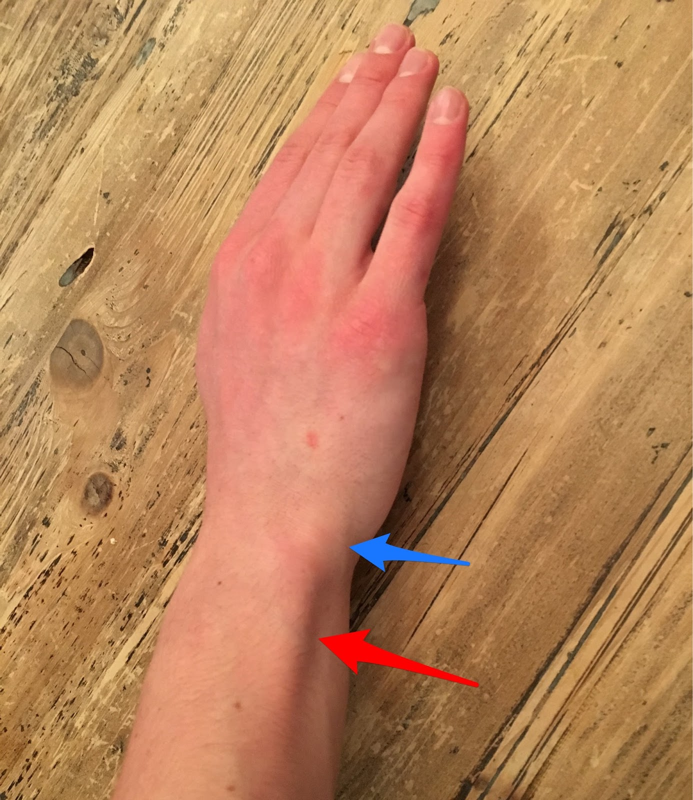 Young Athlete Center Wrist Pain In Baseball