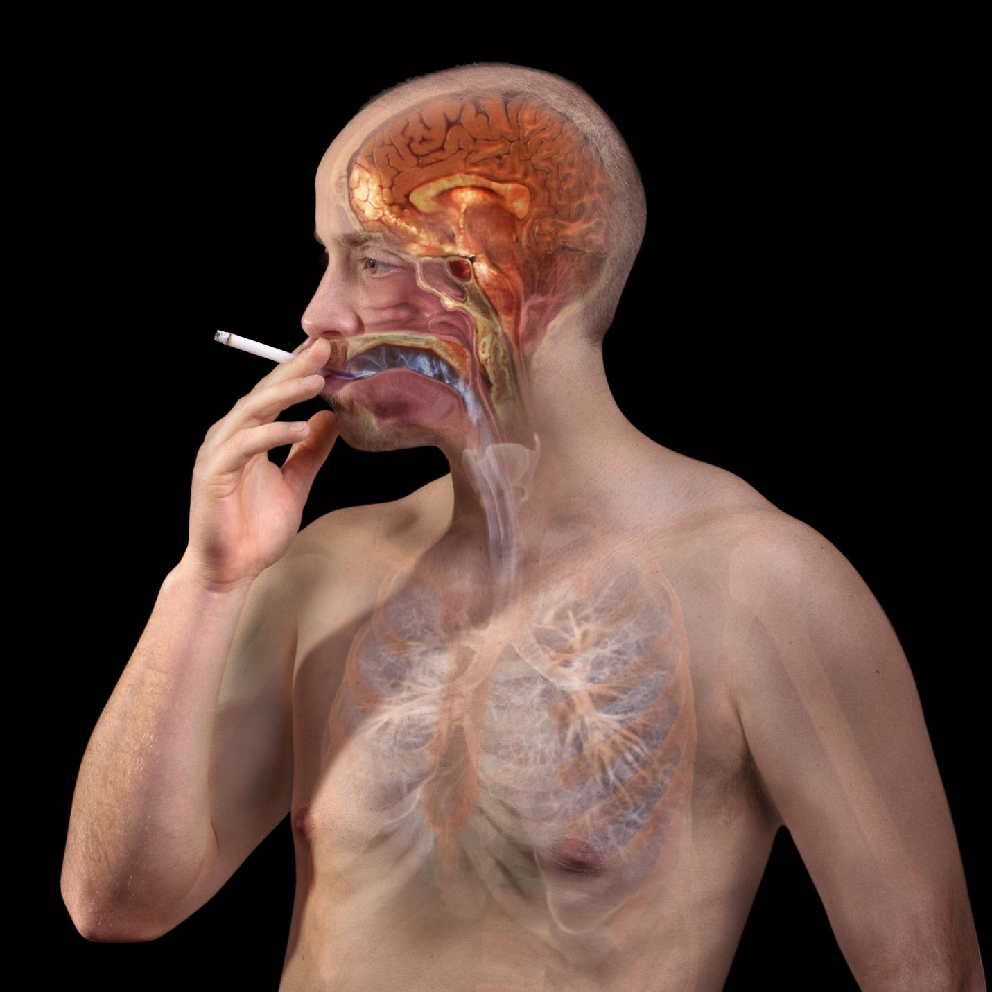 Nicotine Withdrawal & Quit Smoking: Effects, Symptoms and Treatment of Nicotine Withdrawal