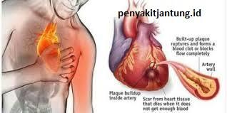 penyebab paling utama jantung koroner