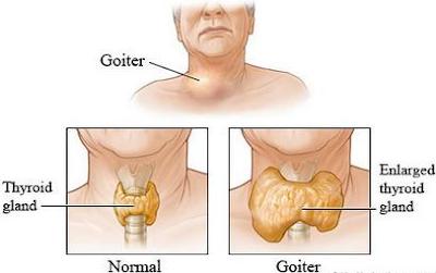 http://www.pusatmedik.org/2017/07/kekurangan-yodium-definisi-penyebab-dan-pengobatan-serta-gejala-klinik-kekurangan-yodium-menurut-ilmu-kedokteran.html