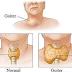 Kekurangan Yodium Definisi Penyebab Dan Pengobatan Serta gejala Klinik Kekurangan Yodium Menurut Ilmu Kedokteran