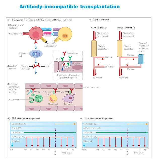 Antibody-Incompatible Transplantation, Antibody Specificity, Antibody removal, Prevention of the formation of additional DSA, Prevention of complement activation, Paired exchange kidney donation