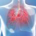 Pulmonary Hypertension, Learn About Pulmonary Hypertension Prognosis, Causes, Symptoms