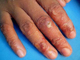 bintik bening berair gatal di badan