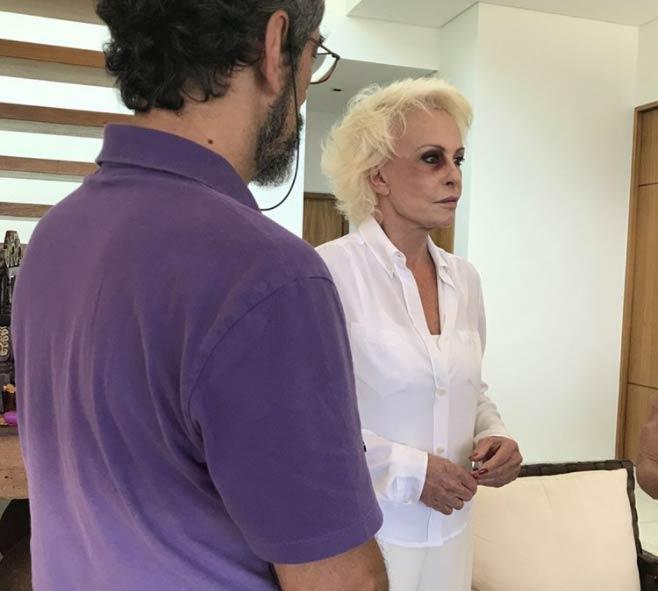 Ana Maria Braga aparece com olho roxo em fotos divulgadas por site