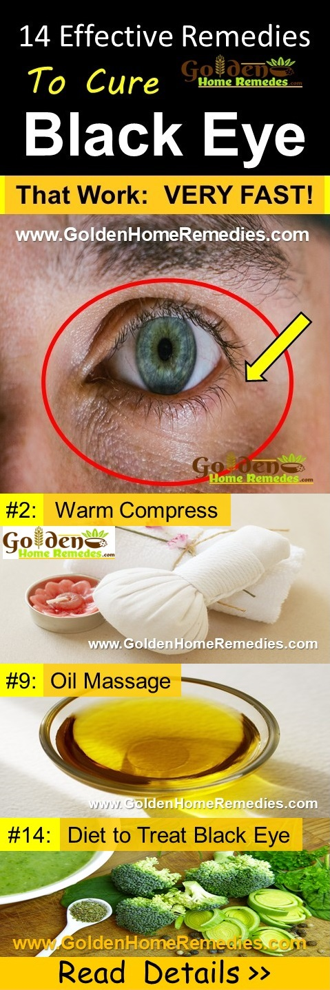 how to get rid of black eye, home remedies for black eye, how to treat black eye fast, black eye treatment, black eye fast relief, black eye home remedies, how to cure black eye, black eye remedies, remedies for black eye, cure black eye, treatment for black eye, best black eye treatment, how to get relief from black eye, relief from black eye,