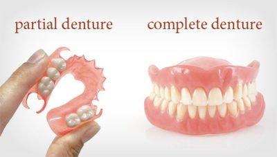 Dental dentures cost 600 USD in HCMC