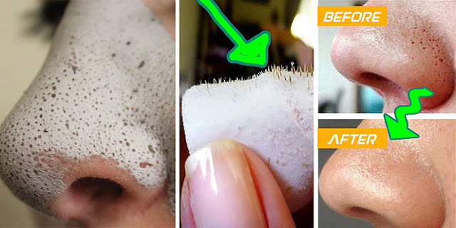 How To Remove Blackheads Within 10 Minutes!