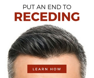 http://www.hairrestore23.com/how-to-stop-receding-hairline-s/1870.htm