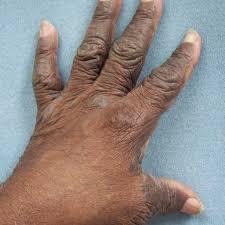 Salep manjur atasin penyakit eksim kering di apotik