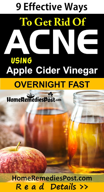Apple Cider Vinegar For Acne, Apple Cider Vinegar Acne, How To Use Apple Cider Vinegar For Acne, Apple Cider Vinegar And Acne, Is Apple Cider Vinegar Good For Acne, How To Get Rid Of Acne With Apple Cider Vinegar,