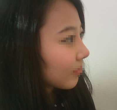 짱이뻐! - My Image Is Getting Softer After Korea Rhinoplasty